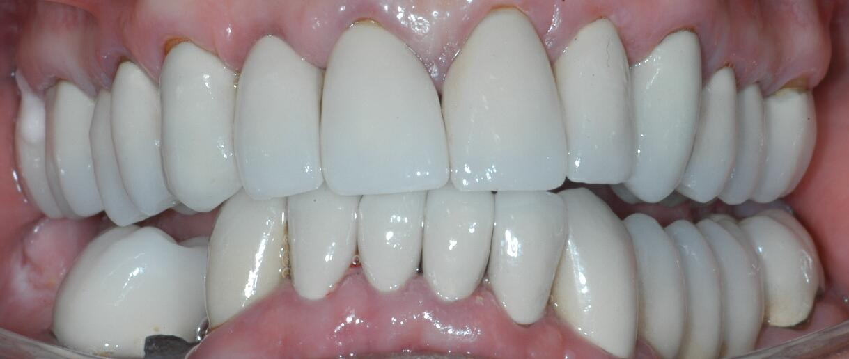 Full Mouth Reconstruction Dr Seluk Dds Dental